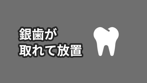銀歯が取れて5年放置